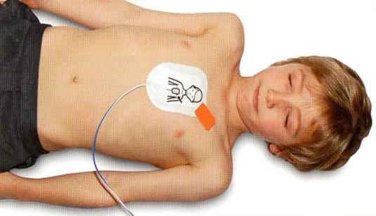 Paediatric-AED